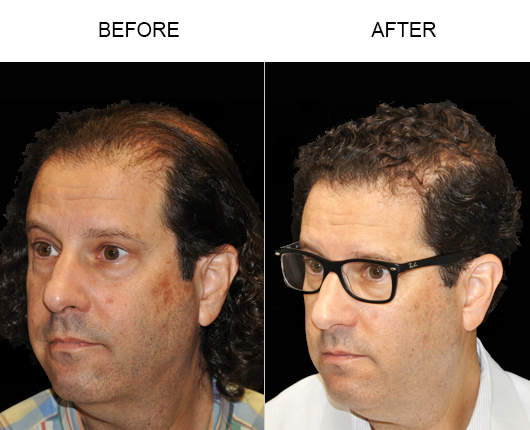 Before And After Image Of Hair Replacement Surgery In Florida