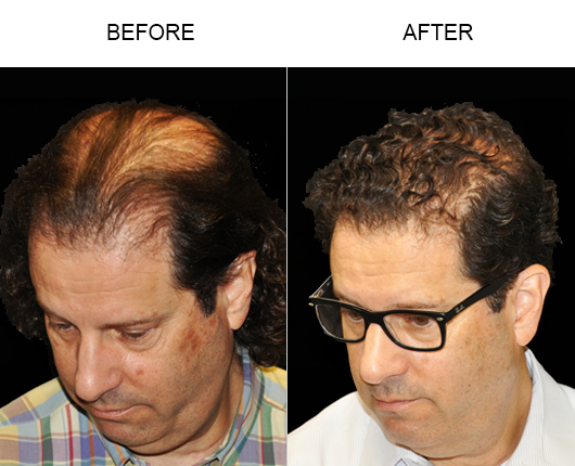Before & After Image Of Hair Replacement Surgery In Florida