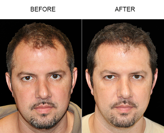 Hair Replacement Before & After Photo