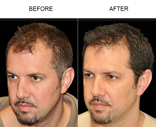 Photo Of Hair Replacement Results