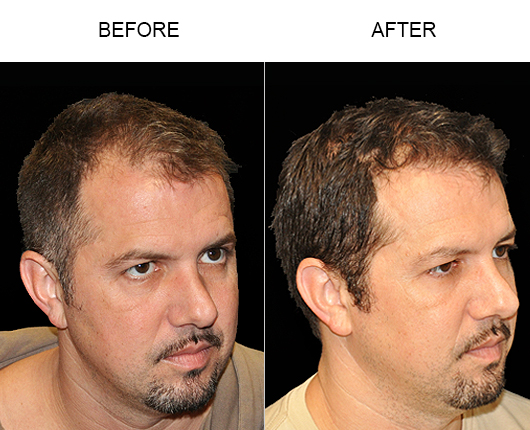 Before And After Photo Of Hair Replacement