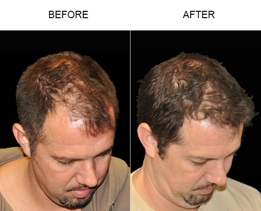 Before & After Photo Of Hair Replacement