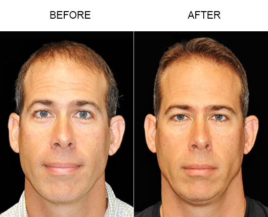 Hair Replacement Before And After Photo In Florida