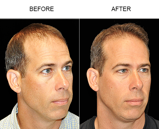 Hair Replacement Before & After Photo In Florida