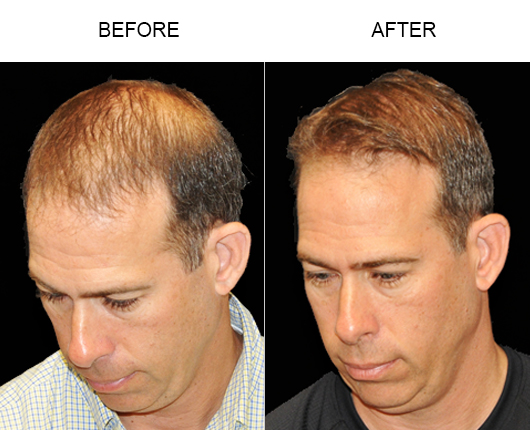 Photo Of Hair Replacement Results In Florida