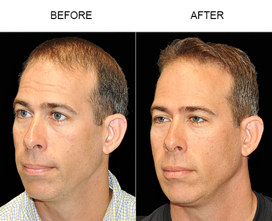 Before And After Photo Of Hair Replacement In Florida