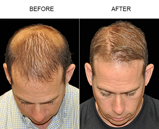 Before & After Photo Of Hair Replacement In Florida