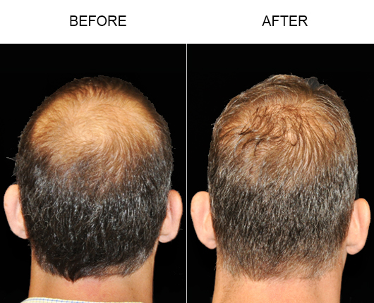 Hair Replacement Surgery Before And After Photo