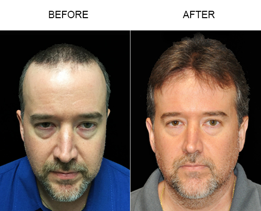 Hair Replacement Surgery Before & After Photo