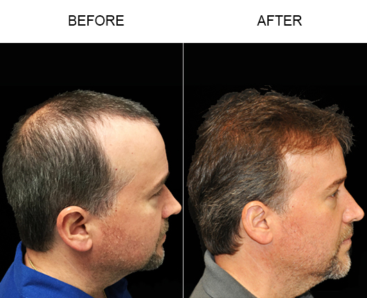 Photo Of Hair Replacement Surgery Results