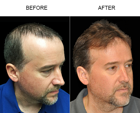 Before And After Photo Of Hair Replacement Surgery