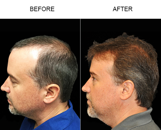 Hair Replacement Surgery Before And After Photo In Florida
