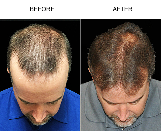 Hair Replacement Surgery Before & After Photo In Florida