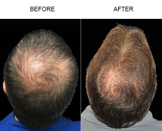 Photo Of Hair Replacement Surgery Results In Florida