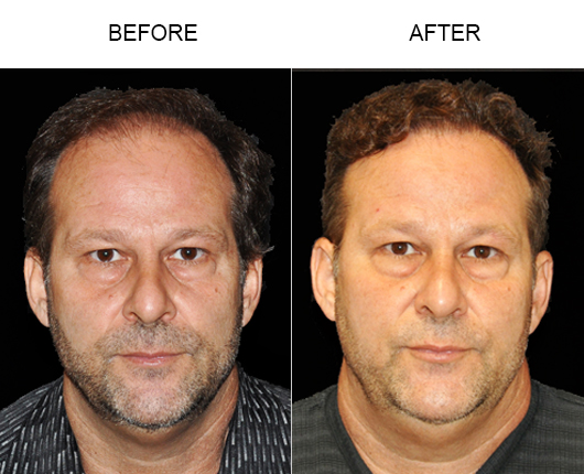 Before And After Photo Of Hair Replacement Surgery In Florida