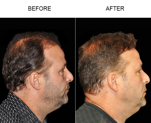 Hair Loss Treatment Before & After