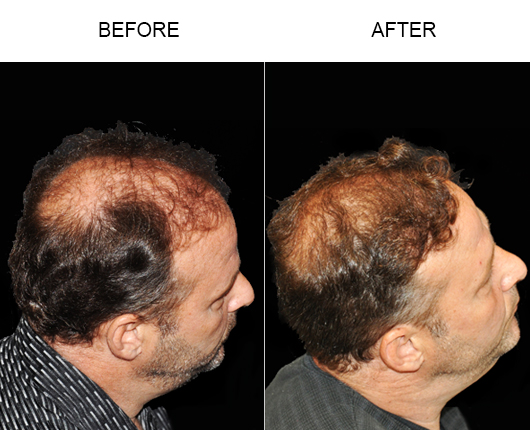 Before & After Hair Loss Treatment