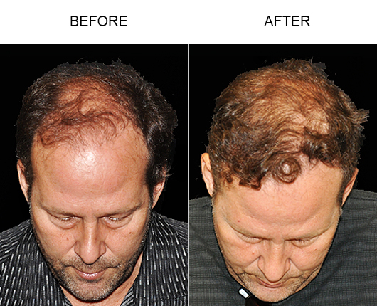 Hair Loss Treatment Before And After In Florida