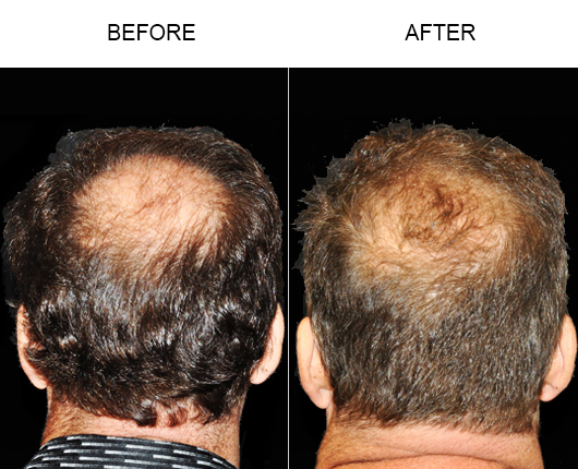 Hair Loss Treatment Before & After In Florida