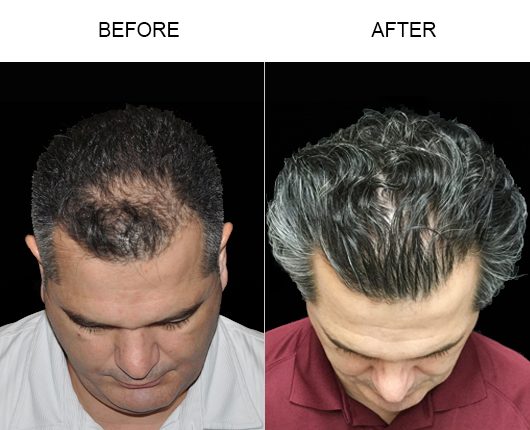 Hair Loss Treatment Results In Florida