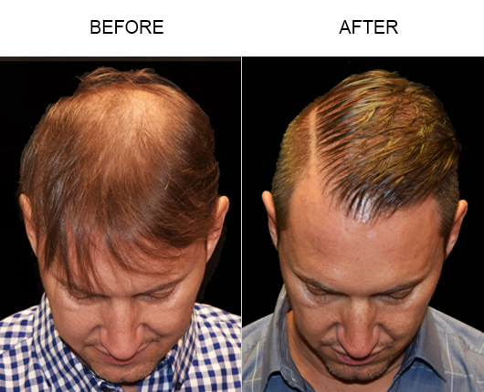 Before And After Hair Loss Treatment In Florida