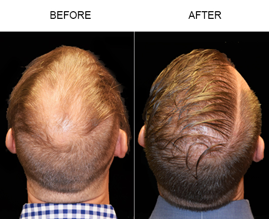Before & After Hair Loss Treatment In Florida