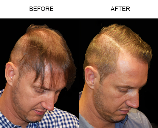 Hair Loss Treatment Before And After Image