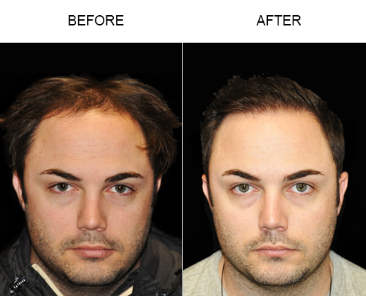 Hair Loss Treatment Before & After Image