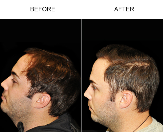 Image Of Hair Loss Treatment Results