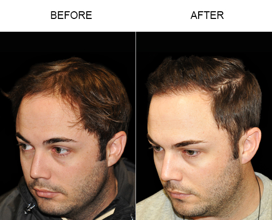 Before And After Image Of Hair Loss Treatment
