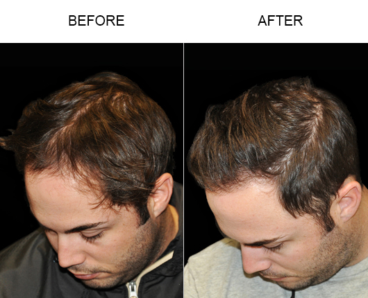 Before & After Image Of Hair Loss Treatment