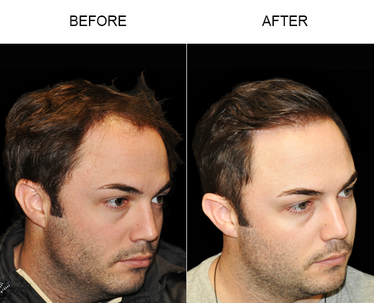Hair Loss Treatment Before And After Image In Florida