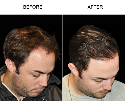 Hair Loss Treatment Before & After Image In Florida