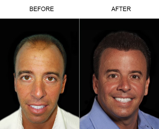 Before And After Photo Of Hair Loss Treatment