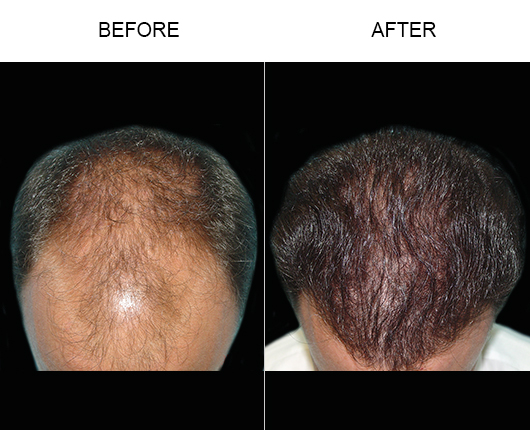 Before & After Photo Of Hair Loss Treatment