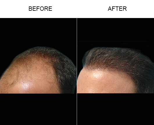Hair Loss Treatment Before And After Photo In Florida