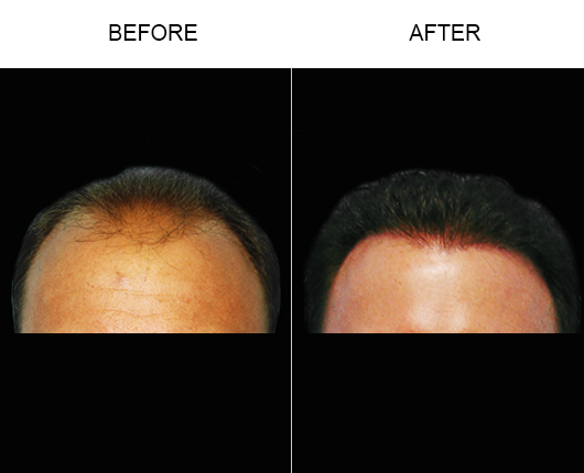 Hair Loss Treatment Before & After Photo In Florida