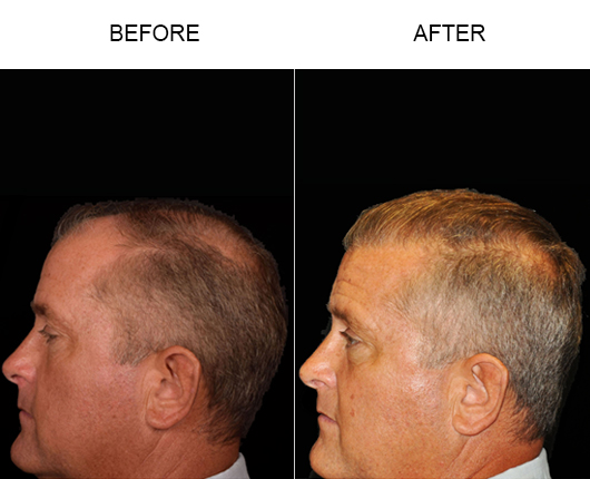 Hair Replacement Before & After Image In Florida
