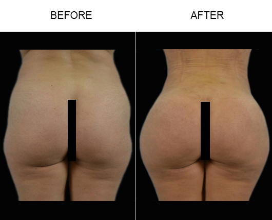 Brazilian Butt Lift Surgery Before And After