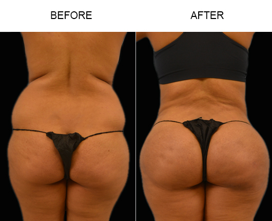 Before & After Brazilian Butt Augmentation Surgery In FL