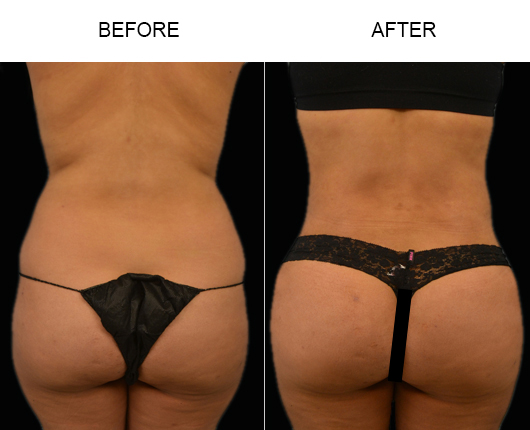 Brazilian Butt Augmentation Treatment Before & After In FL