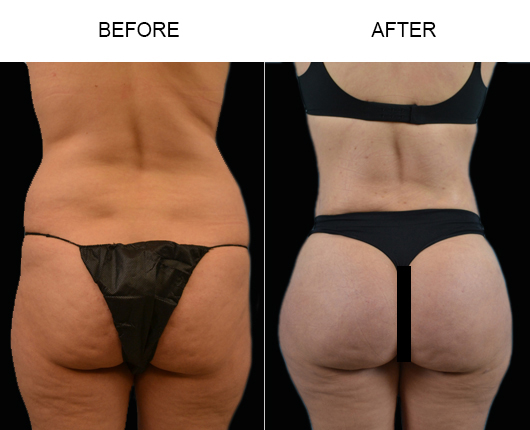 Before & After Brazilian Butt Augmentation Treatment In FL