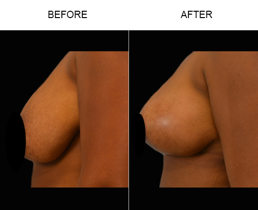 Before & After Mastopexy Surgery