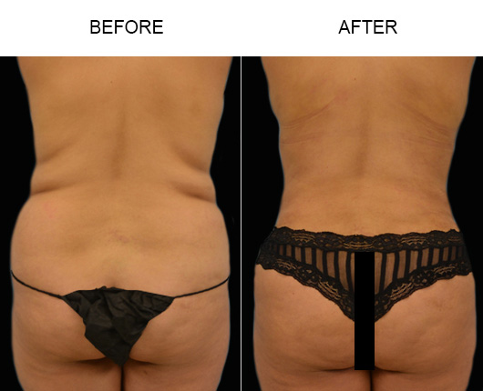 FL Liposuction Before & After