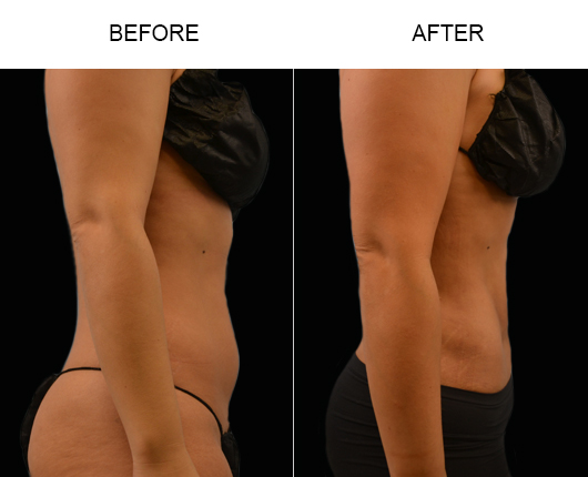 FL Liposuction Surgery Before And After