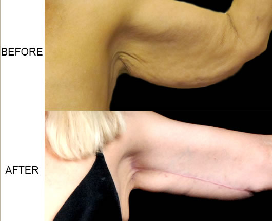 Before & After Arm Lift