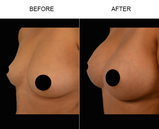Before and After Breast Implants Surgery